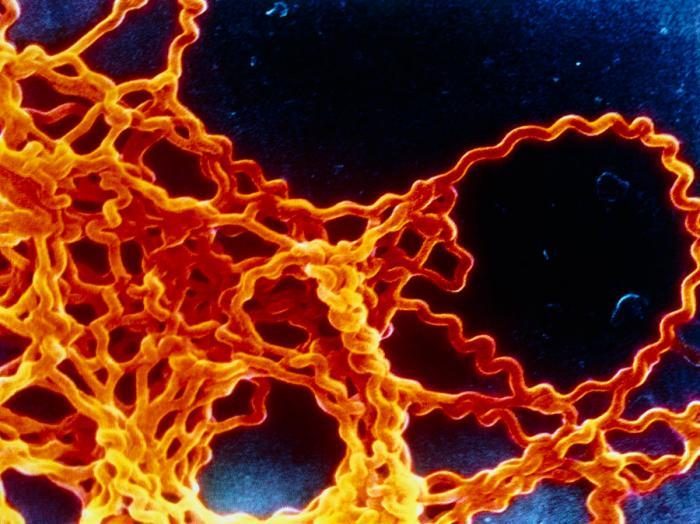 leptospira-sp-bacteria-cnri